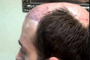 good news to bald head people by visconsis madison university professors, బట్టతలపై నానో హెయిర్!