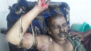 rtc employee srinivas reddy suicide attempt at khamma rtc bus depot, ఖమ్మంలో తీవ్ర ఉద్రిక్తత