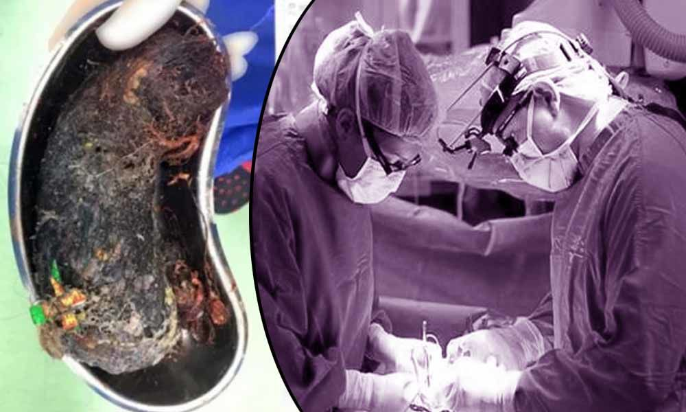 Telangana: Doctors remove 2 kg hair from woman's stomach in Nirmal